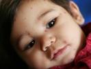 استخدام حليب الأم لعلاج حبوب الأطفال